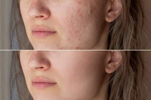 Natural Remedies That Remove Age Spots, Pimples, Moles, And Pores And Skin Tags!
